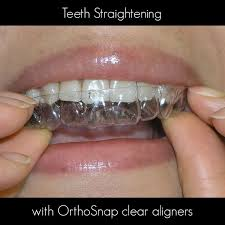 orthosnap new york straight teeth without braces manhattan brooklyn and long island