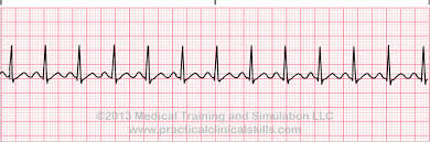 Types Of Arrhythmia Chart Arrhythmia Definition Practice Drills