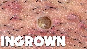 ingrown hair removal what is ingrown hair you s greatest cal