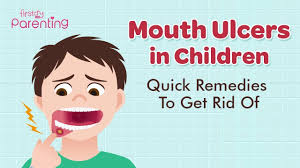 mouth ulcers in infants kids