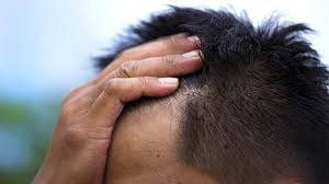 does scalp psoriasis embarr you you re not alone