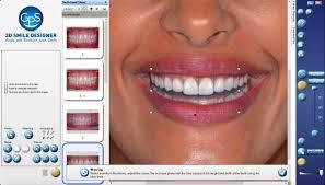 Gps Smile Design 3d Smile Design Software By Dental Gps Middle East Courses