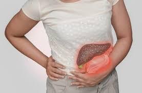 Resultado de imagen para cálculos biliares o piedras en la vesícula remedios caseros