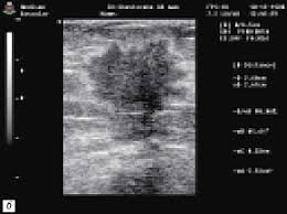 ru Комплексное УЗИ молочных желез протокол обследования  Эхограмма злокачественной опухоли молочной железы