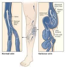 Leg Vein Chart Compression Stockings Wikipedia
