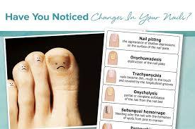 nail changes reflect your dermatologic