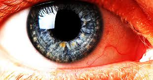 high blood pressure 12 scary things your eyes say about your health pictures cbs news