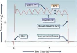 Applanation Tonometer An Overview Sciencedirect Topics