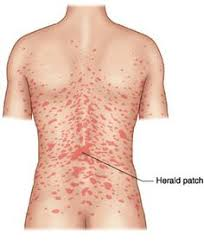 Picture Pityriasis rosea: 1.herald patch 2.Christmas tree pattern of  distribution over