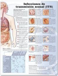 Std Signs And Symptoms Chart Sti Chart Sexually Transmitted Infections Sti Spanish Language Laminated Lfa 99765sp