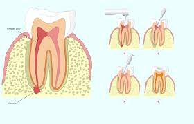 I had agreed and he injected anesthetic. Does Insurance Cover The Cost Of Root Canal Therapy Palm Desert Ca
