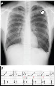 Pneumothorax X Ray Serial Changes In Hammans Sign Secondary To The Evolution