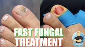 the fastest way to treat toenail fungus