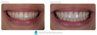 carillas dentales carillas de porcelana tipos de tratamiento y precios en barcelona edb