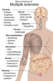 Multiple Sclerosis Subtypes Symptoms Diagnosis And