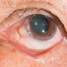 結膜 嚢胞