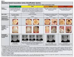 Operative Caries Detection College Of Dentistry And Dental