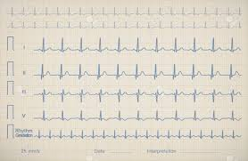 Medical Patient Charts Ecg Chart Image Of Medical Patient Vector Illustration
