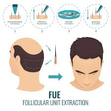 hair transplant how it works hair transplant in bangalore by a certified hair transplant surgeon