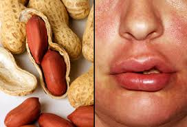 Slideshow: Life-Threatening Allergy Triggers and How to Prevent and ...