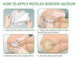Mepilex Border Foam Wound Dressings Self Adhesive All Sizes