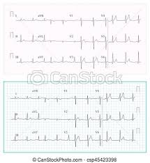 Heart Cardiogram Chart Vector Set Healthy Heart Rhythm Ischemia Infarction Vitality Heartbeat Heart Electrocardiogram Pulse Line