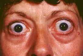 Ziekte van Hashimoto - symptomen & Behandeling