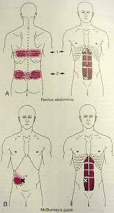 Pijn bovenbuik en rug