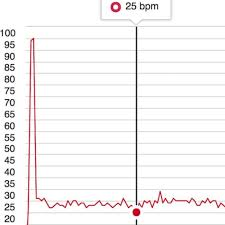 Heart Beats Per Minute Chart This French Biathletes 25 Bpm Resting Heart Rate Is So Low