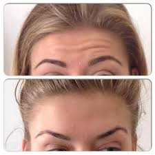 shiseido benefiance wrinkle resist 24 eye cream reviews makeupalley