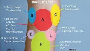 Knee Pain Diagnosis Chart Knee Pain Explained