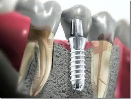 Resultado de imagem para implante dental