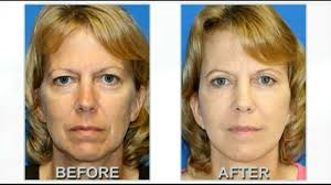 upper face lift surgery