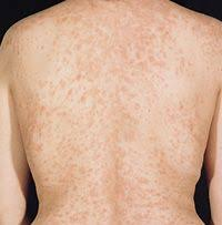 Pityriasis rosea: unknown cause, typical christmas tree distribution occurs  on the chest