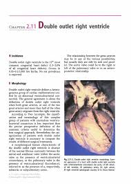 double outlet right ventricle springer inside