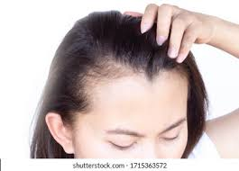 Image result for hair loss images