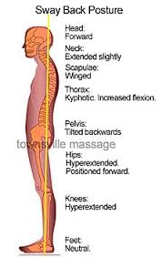 Sway Back Posture Musculoskeletal System Physical Therapy