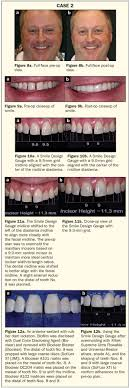 Aesthetic Smiles By Design Chairside Smile Design For Injection Molded Anteriors
