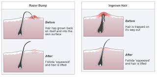 diy ingrown hair cream to get rid of
