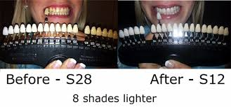 Teeth Whitening 3d Shade Guide R20 Shades Teeth Color Dental Dentist Shade Chart Buy 3d Shade Guide 20 Shades Teeth Color Dental Shade Chart Product
