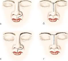 ГЛАВА НОВООБРАЗОВАНИЯ ВЕРХНИХ ДЫХАТЕЛЬНЫХ ПУТЕЙ И УХА Опухоли наружного носа и хирургические доступы а переходно клеточная опухоль носа с дефектом тканей б хирургические доступы при опухолях полости носа