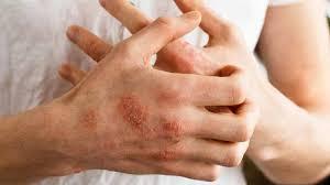 Treat Eczema Dry Itchy Skin   Diydrysite.co