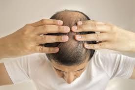 O字ハゲでもおしゃれしたいおすすめの髪型5選 ハゲ治療ゼミ 薄毛