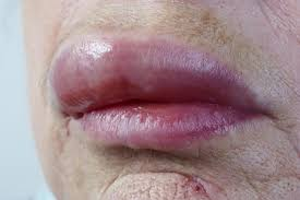 Swollen lips: Causes and treatment