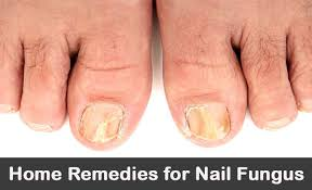 home remes for toenail fungus 20 treatments for toes fingernails