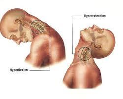Pijn in de nek en misselijk