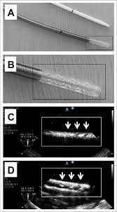 Echographic Image Of A Single Stage Drainge Cannula Tip A