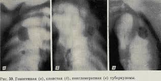 Казеозная пневмония туберкулез 003 туберкулез