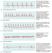 Cardiac Muscle And Electrical Activity Anatomy And