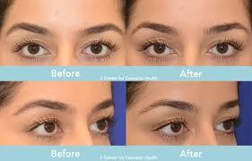 Can botox raise eyebrows